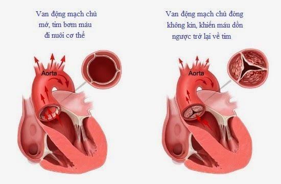 Hình ảnh động mạch chủ bình thường và động mạch chủ bị hở.