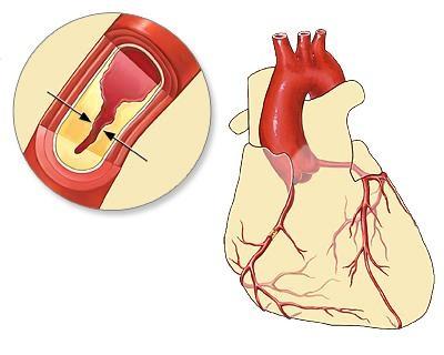 Thiếu máu cơ tim gặp rủi ro ngay cả khi không có triệu chứng - Ảnh 1.