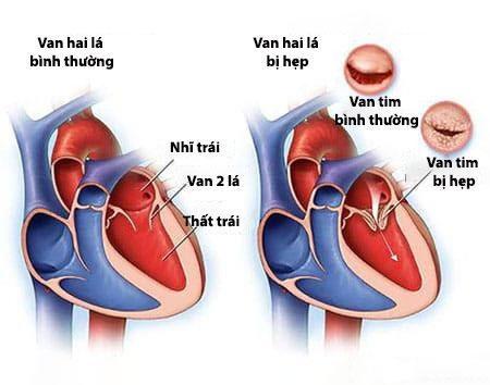 Hẹp van tim là tình trạng lá van không thể mở ra hoàn toàn gây cản trở quá trình lưu thông máu.