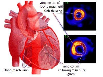 Thiếu máu cơ tim nên ăn gì để giảm đau thắt ngực, tốt cho tim - 1
