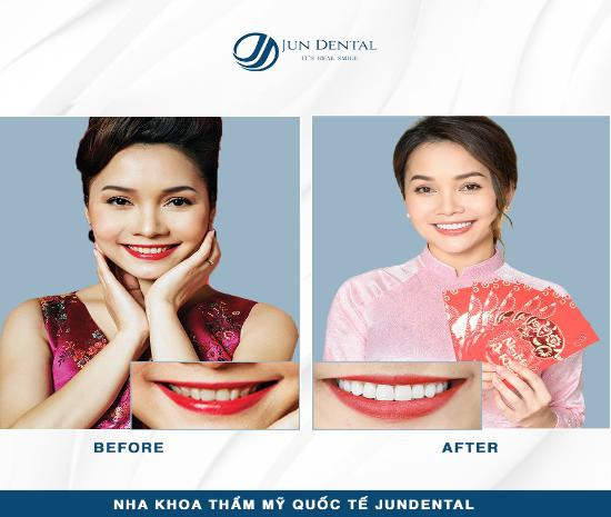 Ưu đãi khủng cuối năm từ Nha khoa Quốc tế Jun Dental - Ảnh 2.