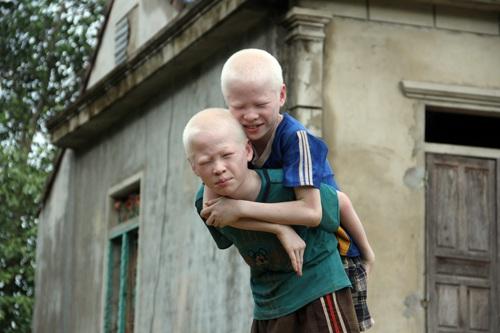 Cảm phục nghị lực của anh em sinh đôi mang bệnh bạch tạng