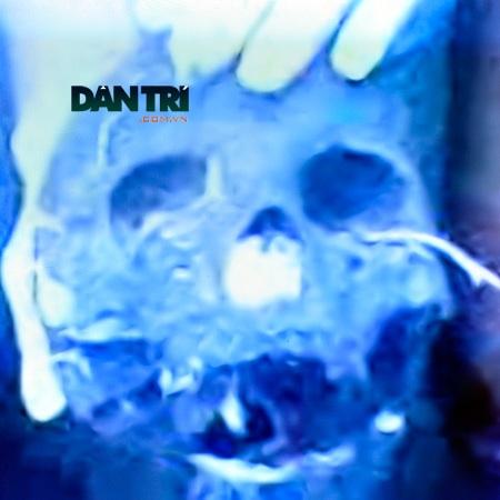 Hộp sọ của bộ xương to hơn đầu người bản địa