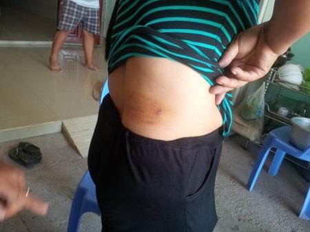Vết thương trên người chị Nguyệt do chị chém bằng sống dao.