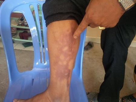 Chân trái của anh Hùng bị bỏng do trúng bom xăng.