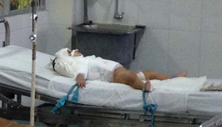 Cháu L. hiện đang nằm điều trị ở Khoa Bỏng, Bệnh viện Nhi Đồng 1.