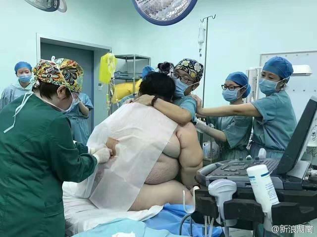 Bà bầu nặng 127 kg cần tới 16 người đỡ đẻ trong bệnh viện