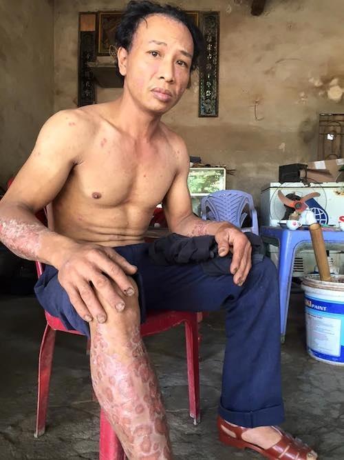 Anh Lê Văn Giang (con trai ông Dinh) mặc bệnh đau đớn suốt hàng chục năm nhưng Phòng Lao động thương binh xã hội huyện Lục Nam kết luận không đủ để hưởng chế độ chính sách.