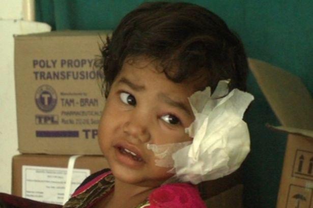 Radhika Mandloi thấy đau và ngứa tai trái từ một tuần trước.