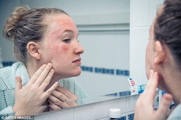 hBD2 có vai trò sống còn trong việc ngăn ngừa tổn thương hàng rào bảo vệ da do vi khuẩn