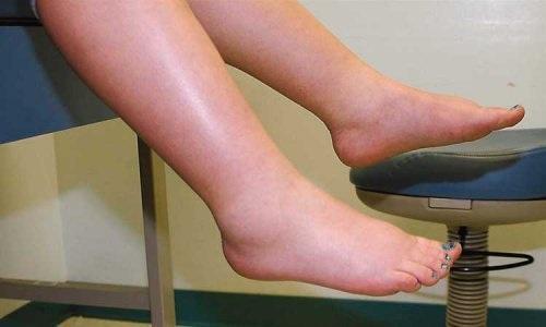 9 dấu hiệu cảnh báo gan bị nhiễm độc - 4