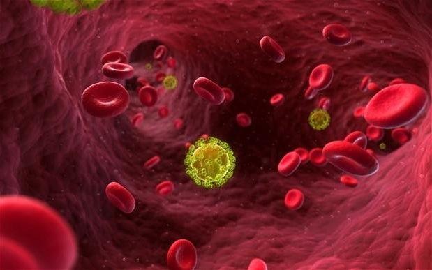 Người đầu tiên trên thế giới được chữa khỏi HIV - 1