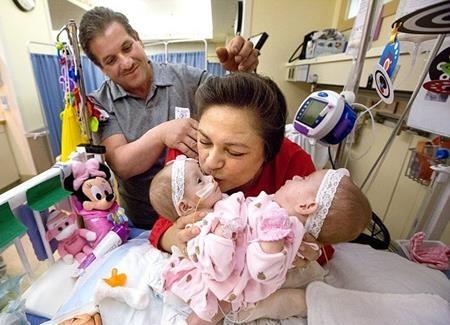 Aida và Arturo đã quyết định cho hai con phẫu thuật vào năm ngoái
