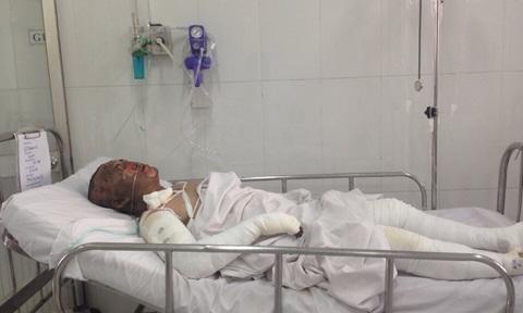 Các nạn nhân bị bỏng đến hơn 90% (Ảnh congan.com.vn)