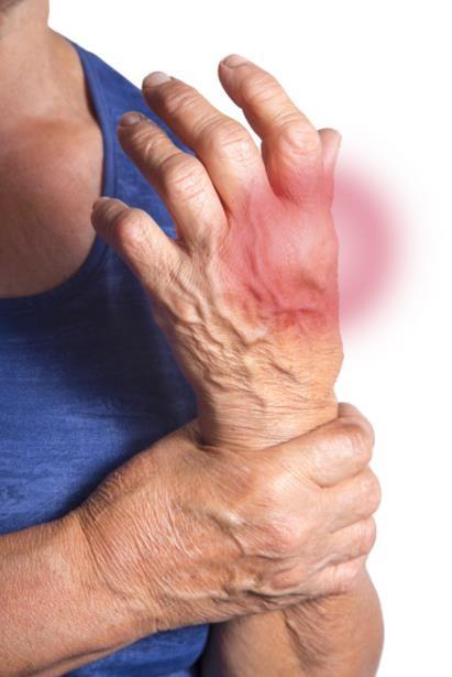 Bệnh nhân viêm khớp thường là những người lớn tuổi và/hoặc có bệnh lý tim mạch đi kèm, hoặc có nguy cơ cao bệnh lý tim mạch