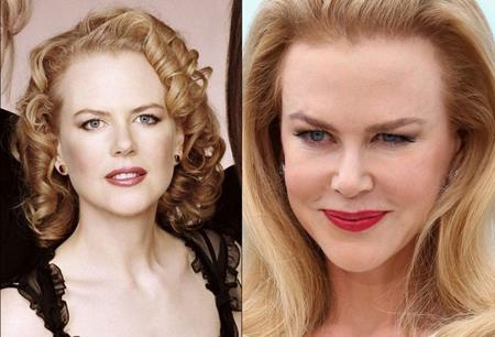 """Khi Nicole Kidman tham gia giới thiệu bộ phim """"Grace of Monaco"""" tại Liên hoan phim Cannes, tất cả mọi sự chú ý ngay lập tức đổ dồn vào gương mặt cứng đờ của """"thiên nga nước Úc"""". Có vẻ như nữ diễn viên này đã lạm dụng việc làm căng da mặt, khiến cho các biểu cảm trở nên vô cùng gượng ép."""