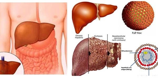 Viêm gan virus B - hiểu đúng để nâng cao chất lượng cuộc sống - 2