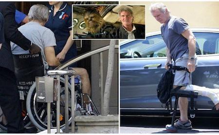 """Nam tài tử đã bị thương nghiêm trọng trên phim trường của """"Star war 7"""""""