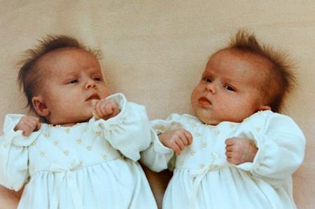 Carole từng có một lần sinh đôi…