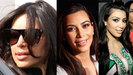 """Nhìn vào những hình ảnh này, có thể thấy rõ diện mạo của cô Kim """"siêu vòng 3"""" đã biến đổi rất nhiều. Tuy vậy, cô Kim vẫn khăng khăng phủ nhận chuyện phẫu thuật thẩm mĩ và cho rằng gương mặt mình chỉ bị sưng phù dạng nhẹ."""