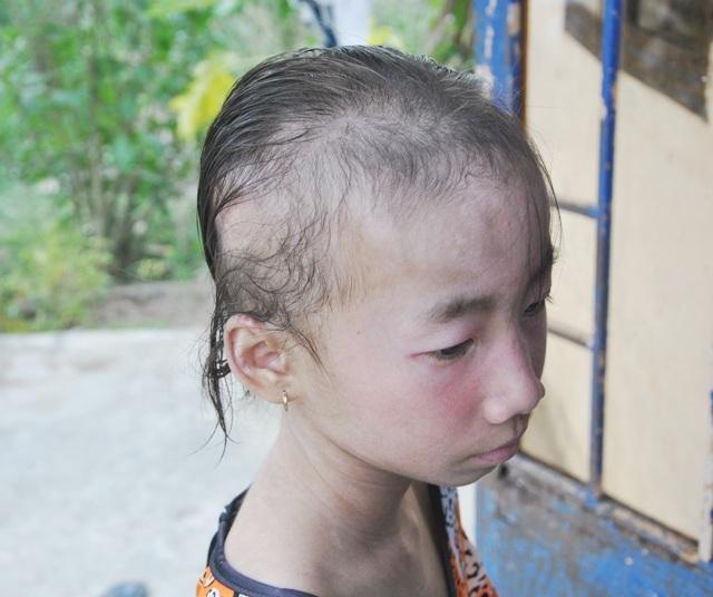 Tóc cháu Tiên cũng rụng dần với các căn bệnh vây lấy khiến cháu trở nên mặc cảm hơn.