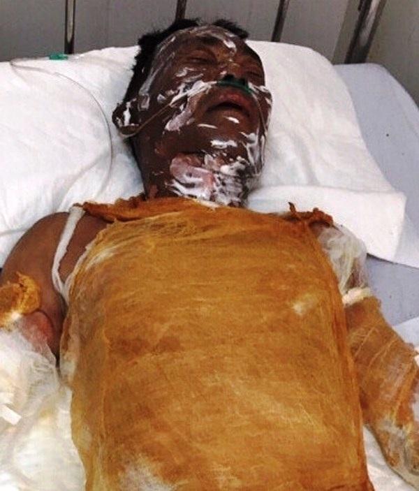 Tình trạng vết bỏng của ông Sơn rất nặng, bị bỏng 70% cơ thể, cấp độ 3, tình trạng rất nguy kịch (ảnh báo Bình Định)