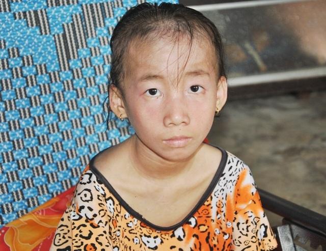 Nhiều năm qua, căn bệnh viêm da cơ đã hành hạ cháu Phạm Ngọc Tiên từ một cô bé xinh xắn trở nên tiều tụy.