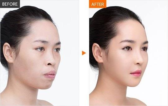 Khuôn mặt của Quỳnh trước và sau khi phẫu thuật