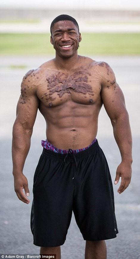Ở tuổi 17, anh Isaiah Griffin đến từ bang Kansas, Mỹ, đã bắt đầu nhận thấy vết sẹo lồi đầu tiên xuất hiện trên chân của mình sau một lần bị thương. Những vết sẹo lồi từng khiến anh Isaiah rất mất tự tin, nhưng sau này, khi tìm tới luyện tập thể hình, anh đã dần lấy được sự tự tin trở lại. Giờ đây, Isaiah là một vận động viên thể hình chuyên nghiệp, đã giành được nhiều giải thưởng tại các sự kiện thi đấu, và đương nhiên không còn ngại ngùng vì những vết sẹo kỳ lạ của mình nữa.