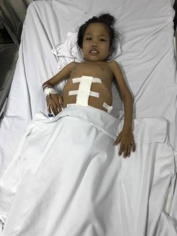 Được bạn đọc Dân trí giúp đỡ kịp thời, cô bé Lò Thị Nhớn đã được phẫu thuật cắt lách kịp thời.