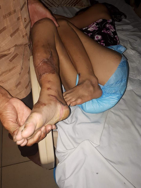 Tai nạn khiến chân phải chị Uyên gãy xương đùi, xương ống chân. Các bác sĩ cho biết chị Uyên còn phải phẫu thuật nhiều lần rất tốn kém nữa.