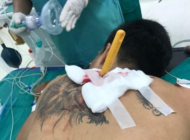 Bệnh nhân được đưa vào phòng phẫu thuật