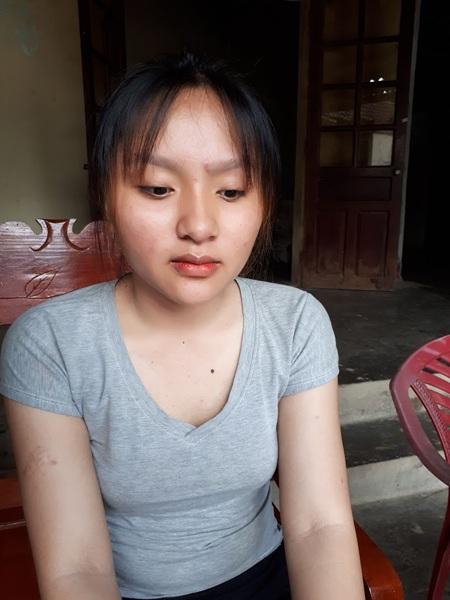 Lan Anh, con gái thứ 2 của bà Khuyên hiện cũng đang bị chứng bệnh giống mẹ. Năm trước Lan Anh cũng đã phải phẫu thuật vú để ngăn chứng ung thư lây lan.