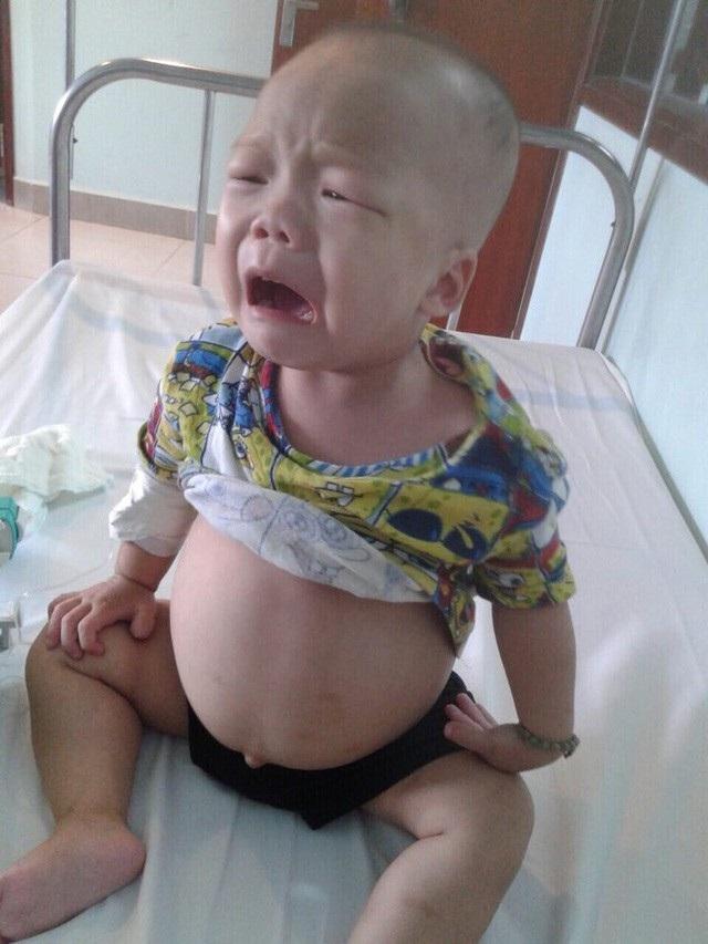 Bị hội chứng thận hư khiến cho cậu bé Phong bụng to như cái trống.