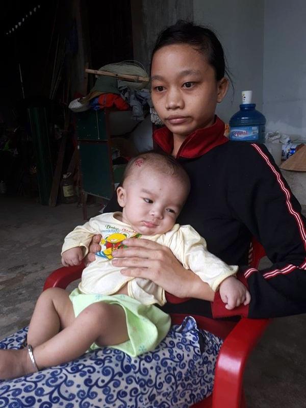 Bé Duy vừa trở về từ Hà Nội. Chứng bệnh vẹo xương ở bàn chân và khối u đang lớn trên đầu hành hạ, khiến bé ốm yếu, trông thật tội nghiệp.