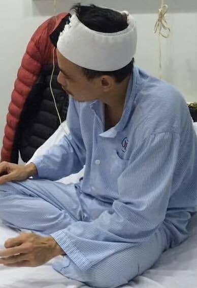 Người nhà bệnh nhân phải khâu 3 mũi ở đầu (ảnh CTV)