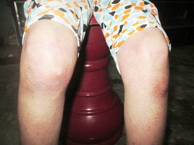 Hai đầu gối của cháu Tiên đã bắt đầu sưng tấy lên gây đau nhức, khiến cháu đi lại rất khó khăn. Căn bệnh có dấu hiệu ăn dần xuống chân của cháu, do không có điều kiện chữa trị nên khiến cho bệnh tình ngày càng trở nặng thêm.