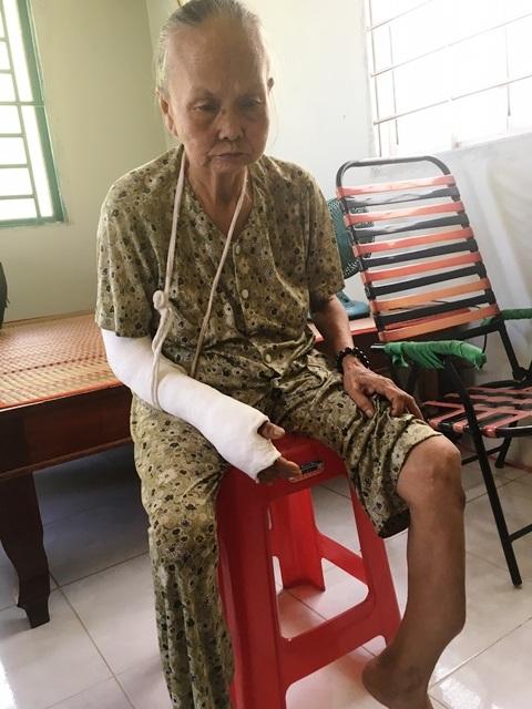 Bà Nghĩa bị tật ở chân giờ đến cánh tay sau 2 lần té ngã