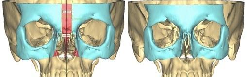 Bên trái: Đục mở xương các khối xương vùng sọ và hàm mặt (màu xanh), phần xương được lấy bỏ (màu đỏ); Bên phải: hai hốc mắt được đưa lại gần nhau