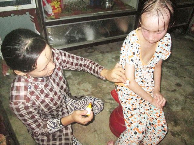 Thương bé gái bị lở loét khắp người phải nghỉ học vì không tiền chữa bệnh - 6