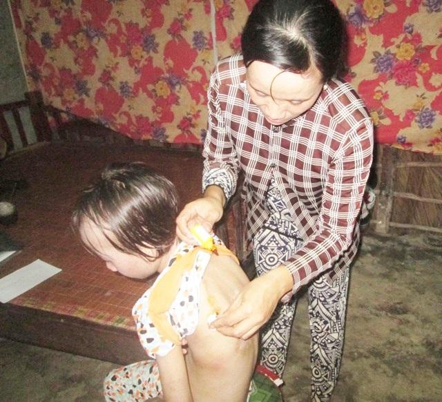 Hàng ngày ngoài uống thuốc, cháu Tiên được mẹ sức thuốc, rửa những vết loét để bớt đau và tránh nhiễm trùng. Việc này cũng chỉ tạm thời bởi phải có tiền đi viện thì cháu mới có khả năng sớm lành bệnh.