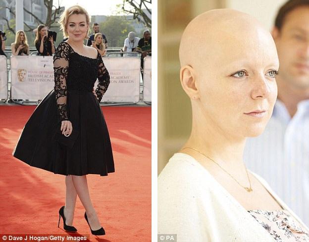 """Nữ diễn viên người Anh Sheridan Smith (36 tuổi) vào vai bệnh nhân ung thư trong bộ phim """"The C-Word"""" (2015)."""