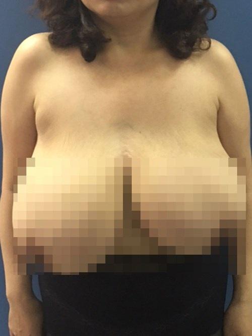 Bệnh nhân trước khi phẫu thuật có thể tích vú gấp 7 lần người bình thường