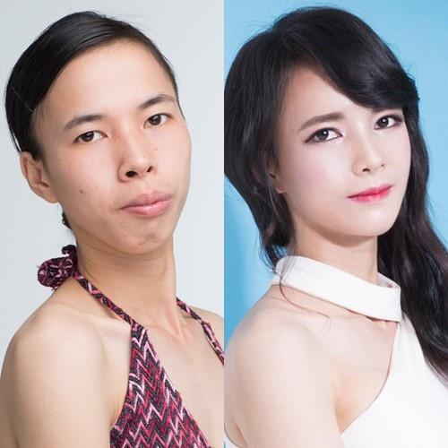 Hình ảnh của Dịu trước và sau phẫu thuật thẩm mỹ