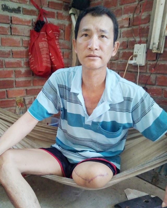 Anh Lý Thanh Trường bị cưa chân trái sau khi điều trị qua 3 bệnh viện.