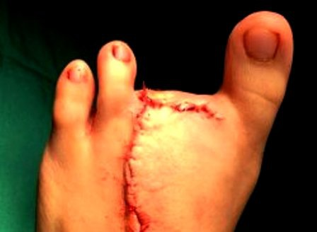 Sau phẫu thuật đoạn ngón, các bác sĩ sẽ tái tạo lại để giúp trẻ có bàn chân gần như bình thường