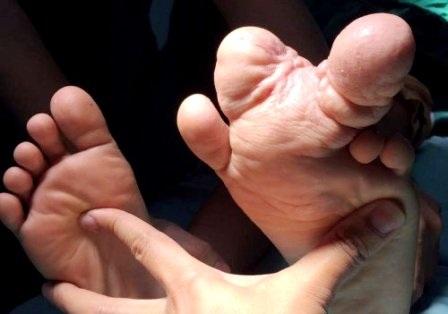 Các ngón chân phì đại khiến bệnh nhi gặp nhiều khó khăn khi vận động