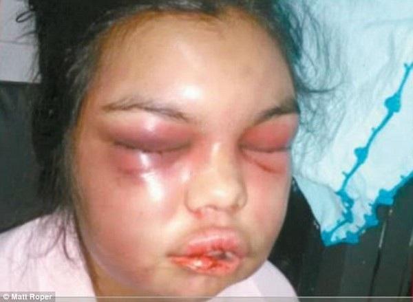 Gương mặt bị biến dạng và cơ thể bị bầm dập của Adolfina sau mỗi trận đòn của chồng