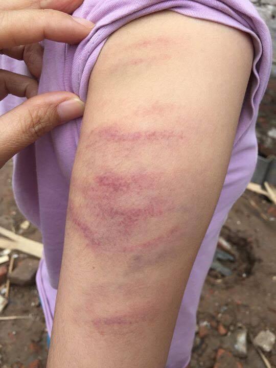 Vết đánh của cô chủ nhiệm trên tay cháu Y (ảnh gia đình cung cấp)