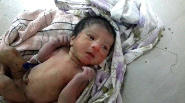 Các nhân viên y tế đã lấy gai ra khỏi người em bé, cho bé tắm rửa sạch sẽ và cho ăn.